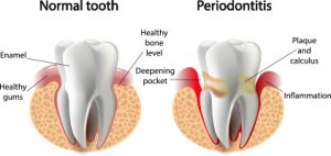 Healthy Tooth vs Periodontitis