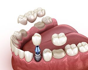 Dental Implant vs Crown and Bridge