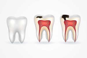 Stages of Cavities