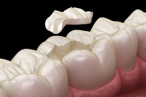 Dental Inlay on Tooth